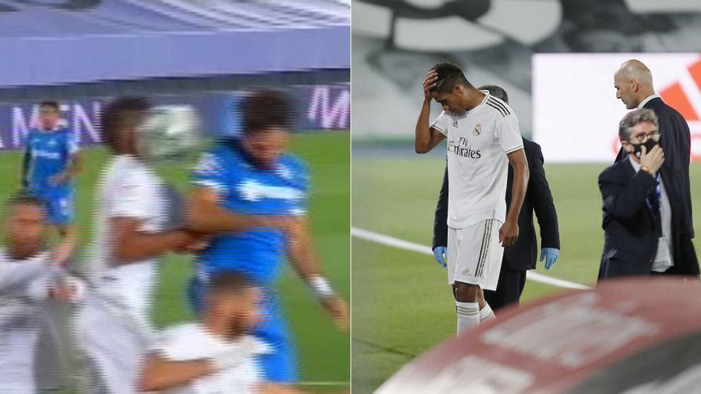 """""""Hưởng trọn"""" quả bóng vào mặt, sao Real rời sân ngay phút 20"""